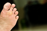 Where Does a Plantar Wart Develop?